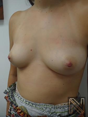 Inverted Nipple Surgery: Patient 3 - After 2