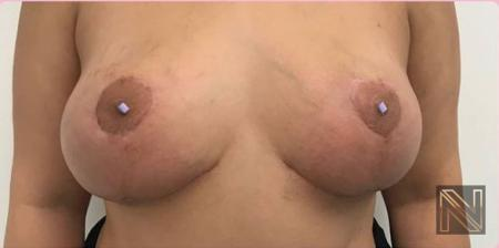 Breast Lift: Patient 9 - After 1