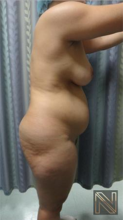 Liposuction: Patient 15 - Before Image 2