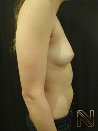 Inverted Nipple Surgery: Patient 3 - Before and After 5