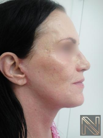 Fractional Resurfacing: Patient 1 - After 2