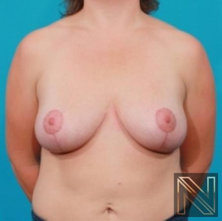 Breast Lift: Patient 12 - After 1