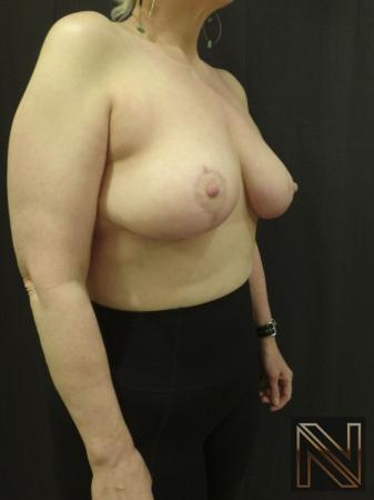 Breast Lift: Patient 3 - After Image 2