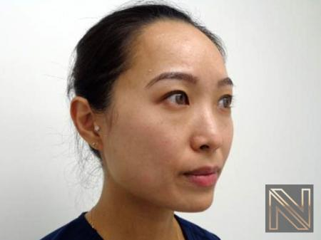Laser Skin Resurfacing - Face: Patient 5 - Before and After Image 2