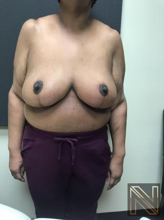 Breast Reduction: Patient 2 - After 1