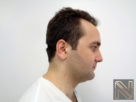 Laser Skin Resurfacing - Face: Patient 3 - Before and After Image 5