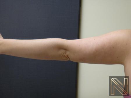 Liposuction: Patient 24 - After Image 1