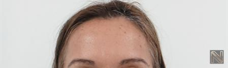 BOTOX® Cosmetic: Patient 6 - After Image