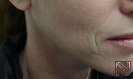 Fillers: Patient 14 - Before Image 1