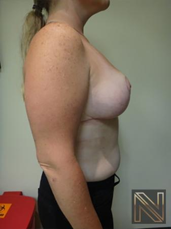 Breast Reduction: Patient 9 - After Image 5
