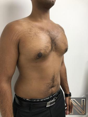 Gynecomastia: Patient 7 - After Image 4