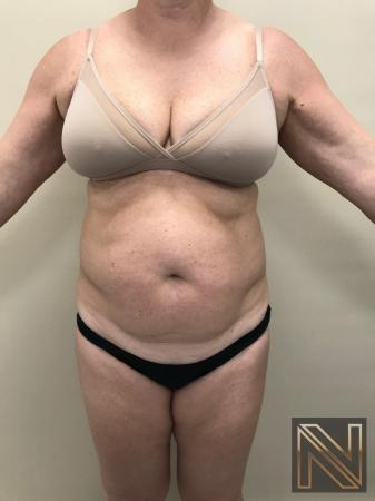 Liposuction: Patient 11 - Before Image 1