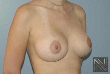 Breast Augmentation: Patient 19 - After Image 2