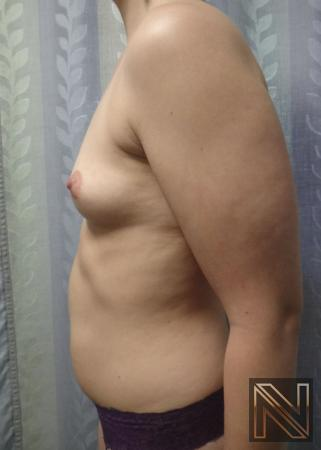 Breast Augmentation: Patient 15 - Before and After Image 5