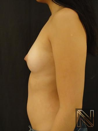 Inverted Nipple Surgery: Patient 2 - Before 4