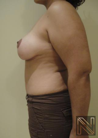 Breast Lift: Patient 6 - After Image 5