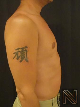 Gynecomastia: Patient 2 - After Image 5