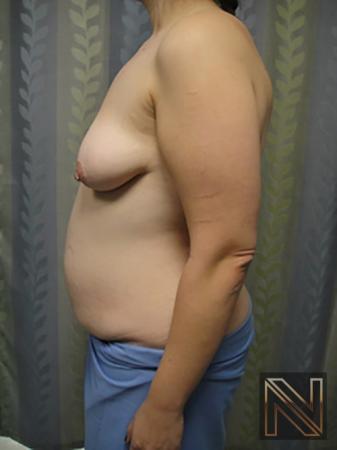 Abdominoplasty: Patient 5 - Before 2