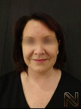 Facelift/Mini Facelift: Patient 4 - After Image 2