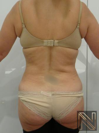 Liposuction: Patient 21 - After 1