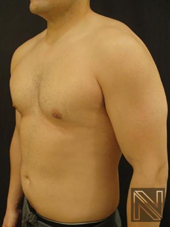 Gynecomastia: Patient 3 - After Image 2