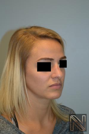 Rhinoplasty: Patient 3 - Before and After Image 3