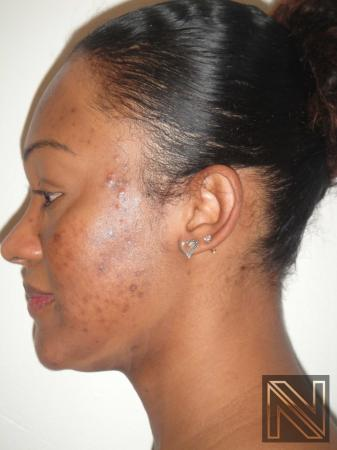 Laser Skin Resurfacing - Face: Patient 4 - Before and After Image 3