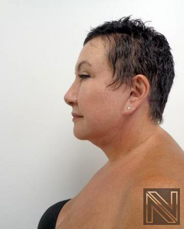 Facelift/Mini Facelift: Patient 6 - After Image