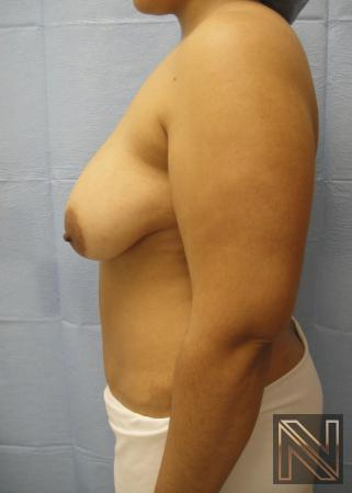 Breast Lift: Patient 6 - Before and After Image 5