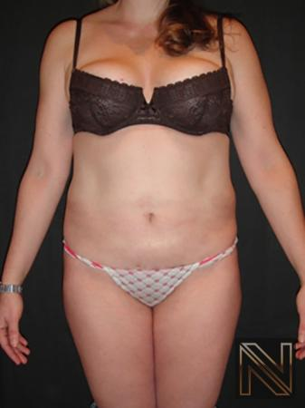 Liposuction: Patient 6 - After Image