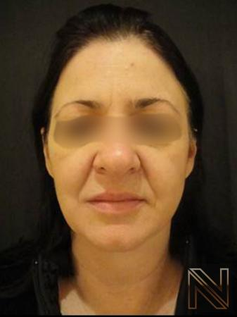 Liquid Facelift: Patient 4 - Before Image