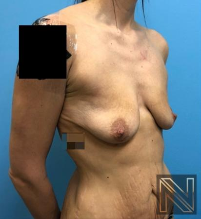 Abdominoplasty: Patient 31 - Before and After Image 2