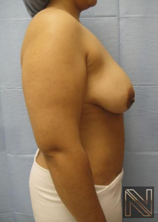 Breast Lift: Patient 6 - Before Image 4