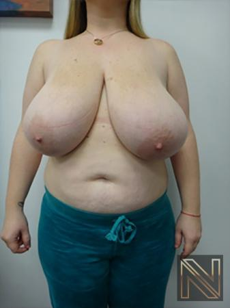 Breast Reduction: Patient 9 - Before Image 1