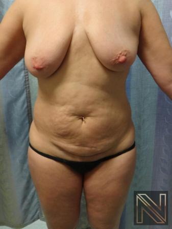 Mini Tummy Tuck: Patient 7 - Before Image 1