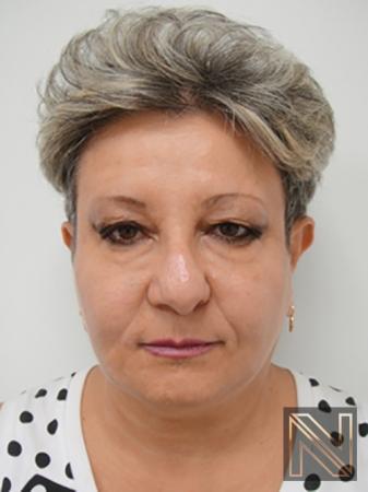 Liquid Facelift: Patient 3 - After Image 1
