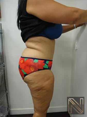 Abdominoplasty: Patient 14 - After Image 3