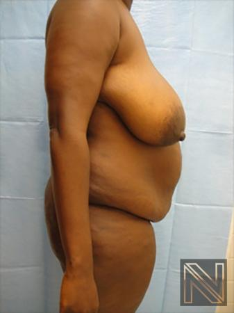 Abdominoplasty: Patient 9 - Before and After 3