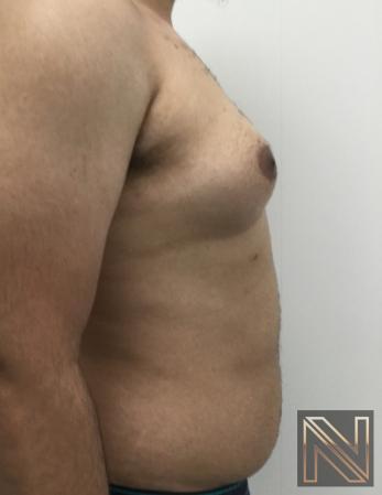 Gynecomastia: Patient 10 - Before 3