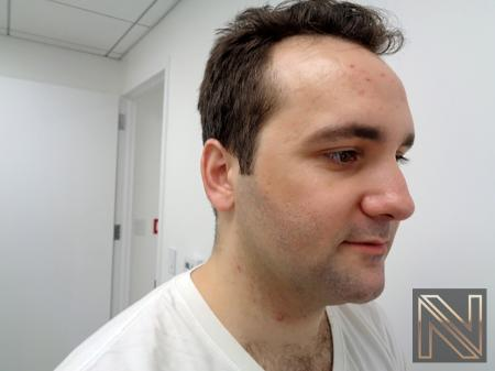Laser Skin Resurfacing - Face: Patient 3 - Before Image 3