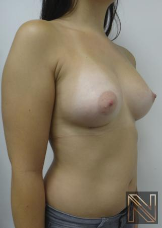 Breast Augmentation: Patient 15 - After Image 2