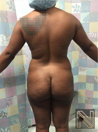 Butt Augmentation: Patient 4 - Before and After Image 4