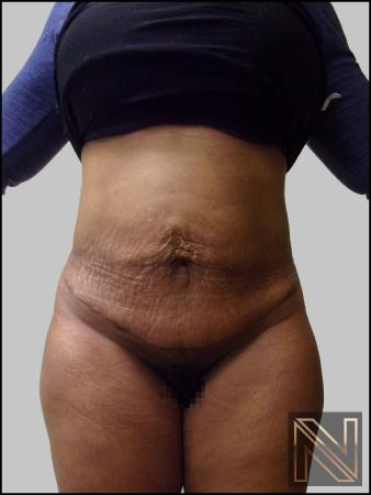 Mini Tummy Tuck: Patient 3 - After Image