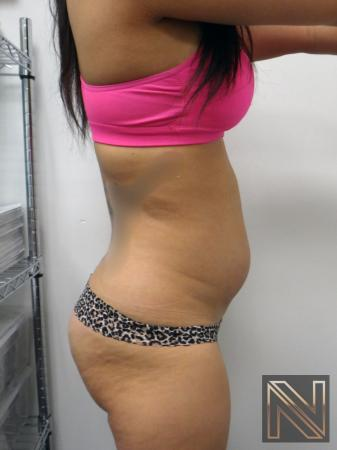 Liposuction: Patient 9 - Before Image 2