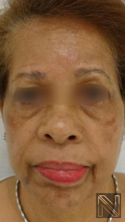Laser Skin Resurfacing - Face: Patient 2 - Before Image 1