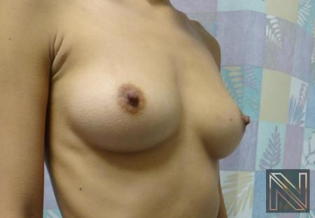 Breast Augmentation: Patient 1 - Before Image 4