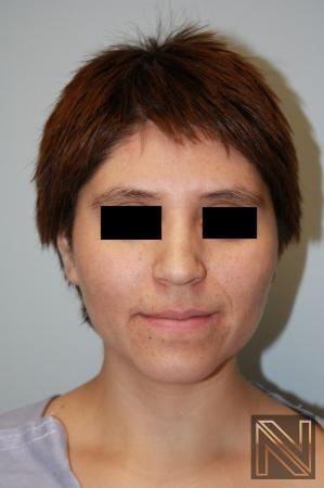 Rhinoplasty: Patient 5 - Before Image