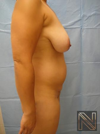 Liposuction: Patient 7 - Before Image 3