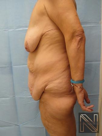 Abdominoplasty: Patient 3 - Before Image 2