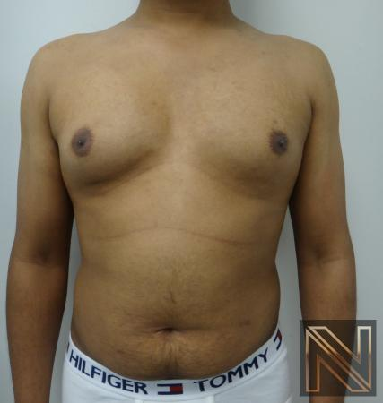 Gynecomastia: Patient 6 - Before Image